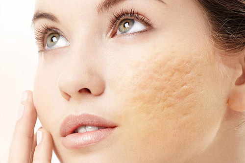Acne Scars Or Chicken Pox Scars Treatment In Rajkot Vivid Skin Care