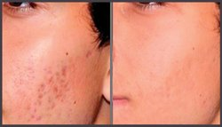 Acne Deep Scar Removal Treatment