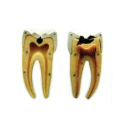 Dental Caries Model
