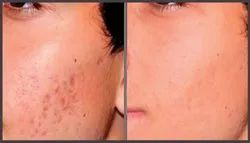 Acne Deep Scar Removal Treatment in chennai