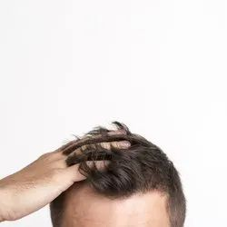 Non Surgical Hair Replacement Treatment