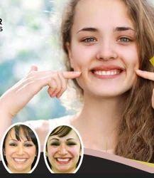 Dimple Creation Treatment Services