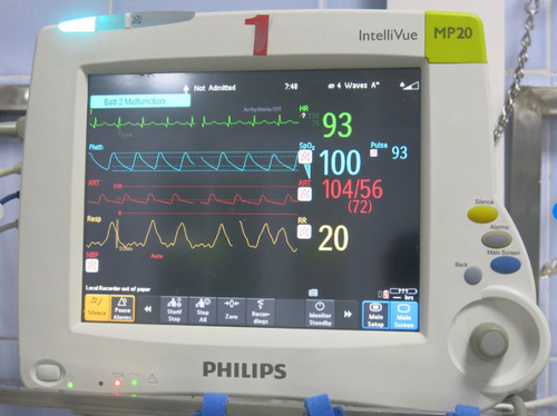 Philips Patient Monitor