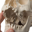Human Skull Model with Cleft Jaw and Palate