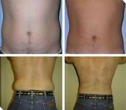 Liposuction - Vaser: Hips/Love-Handles Treatment Service