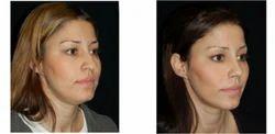 Liposuction - Vaser Cheek Treatment Service