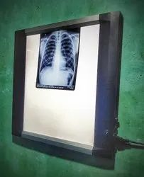 X Ray View Box Digital X-Ray Viewer, For Hospital