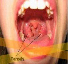 Oral Submucous Fibrosis Treatment