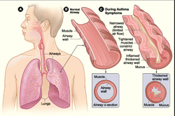 Asthama Treatment Services