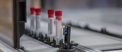 Thyroid Stimulating Hormone Testing Service