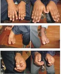 Homeopathic Treatment Of Throid Problems