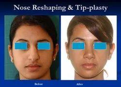 Cosmetic Plastic Surgery Nose Reshaping Rhinoplasty