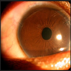 Complex Cataract Surgeries Treatment Services