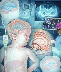 Pediatric Neurosurgery Services
