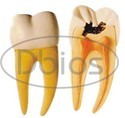 Dental Molar with Caries Model