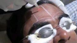 Skin Lightening Services