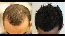 10am T0 8pm Unisex Hair Fall Treatment Service