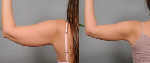 Arms Liposuction Treatment