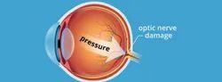 Glaucoma Surgery Service