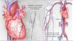 Diagnostic Cardiac Catheterizations Treatment Services