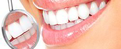 Cosmetic Or Aesthetic Problems Of Teeth