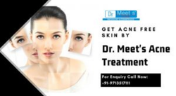 Acne Treatment Service