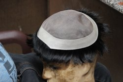 Hair Patch Service In Gurgaon