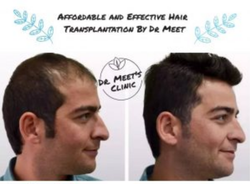 Hair Transplantation Service