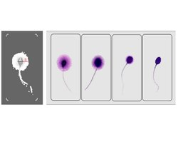 Sperm Function Test Analysis