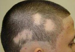 Alopecia Treatment