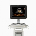 Clear Vue 550 Ultrasound (Refurbished)