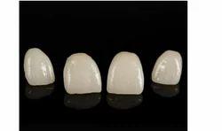 Modern Endodontics Treatment Service