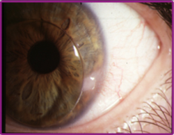 Corneal Lens Service