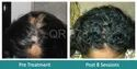 QR 678 Treatment for Hair Growth in Alopecia Areata Treatment