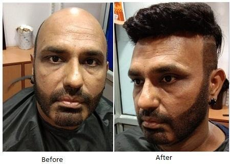 Beauty Plus Retailer Of Hair Patch In Jaipur Hair System For Men