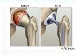 Hip Replacement Surgery >> Hip Replacement Surgery Hip Surgery ट टल ह प