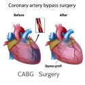 CABG Surgery