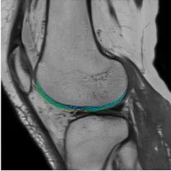Orthopedic Imaging