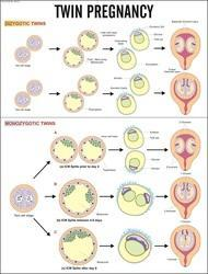 Twin Pregnancy For Nursing Chart