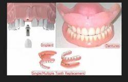 Periodontal  Dental Treatments Service