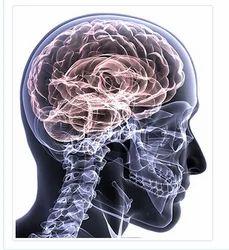 Neurology And Neurosurgery Treatment Service