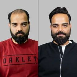 Male American Hairline Non Surgical Hair Replacement