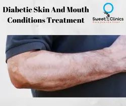 Diabetic Skin And Mouth Conditions Treatment