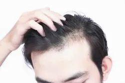 Hair Loss Treatment & Hair Growth