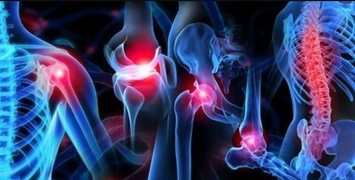 Image result for orthopedic animation