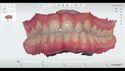 TRIOS 3 in 1 Digital Impression Scanning