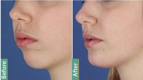 Chin Augmentation Surgery in Gurgaon, South City- 1 by