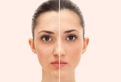 Facelift surgery Cosmetic Treatment