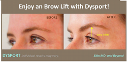 Filler Treatment for Eyebrow Lifting