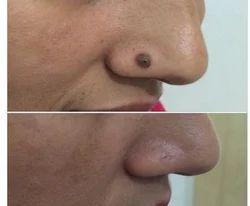Mole Removal Treatment Services